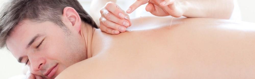 Akupunkturlegen