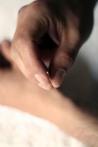 Akupunkturbehandling med medisinsk akupunktør